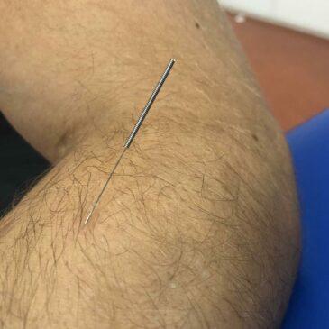 Wat is Dry Needling?
